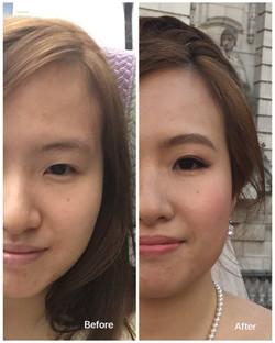 Single eyelids to double eyelids