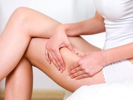 Cos'è la cellulite?