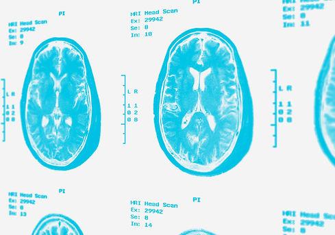 brain-scan-tralesinidase-alfa.jpg