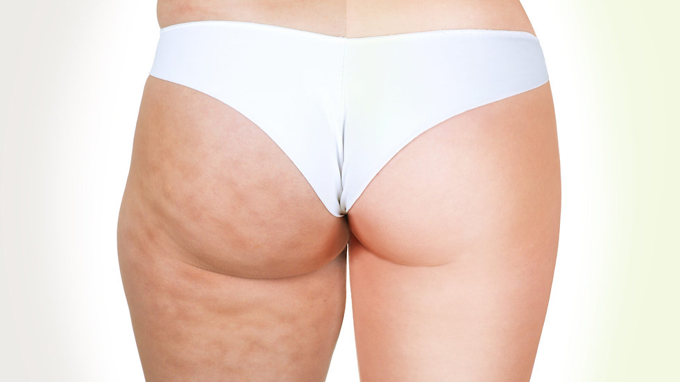 1x Radiofréquence anti-cellulite corps