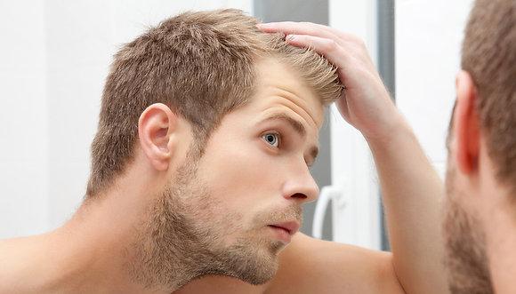 Traitement allopécie - chute des cheveux