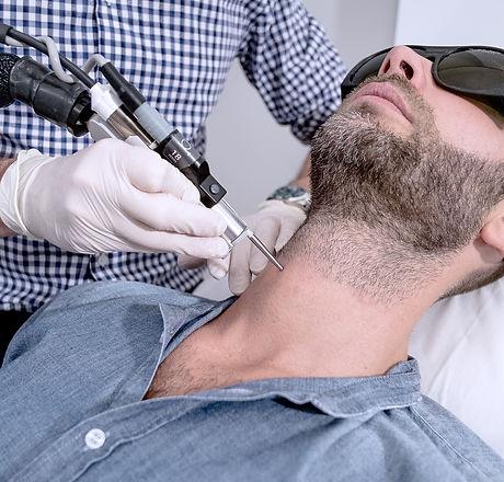 Epilation-laser-homme-barbe-cannes.jpg