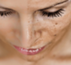 Photorejuvenation-IPL-cannes-peeling-tac