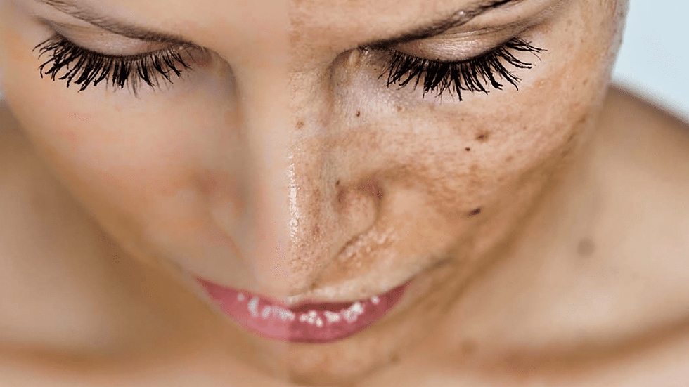 Peeling visage doux