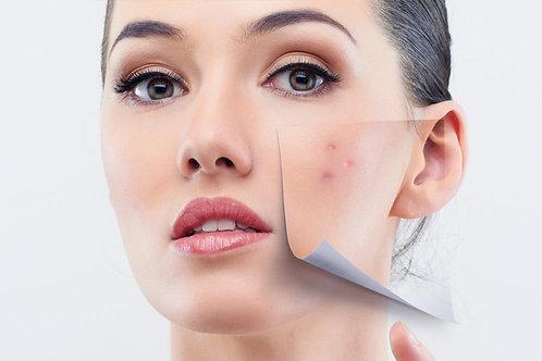 Forfait acné