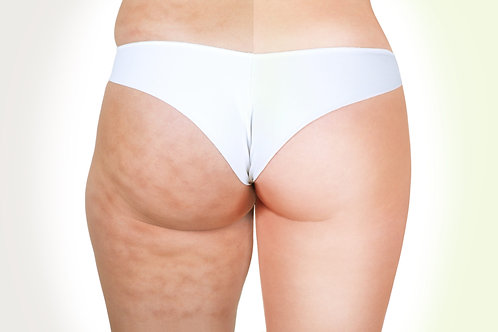 10x Radiofréquence anti-cellulite corps