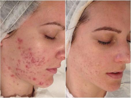 Cicatrices d'acné - Le remède?  Microneedling à Cannes