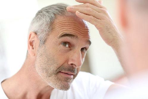 Forfait 10 séances contre chute de cheveux H/F