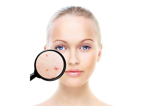 acne-treatment-cannes.jpg