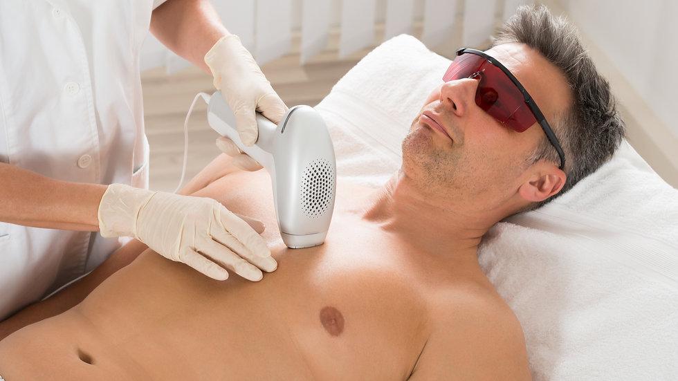 Epilation laser hommes moyenne zone