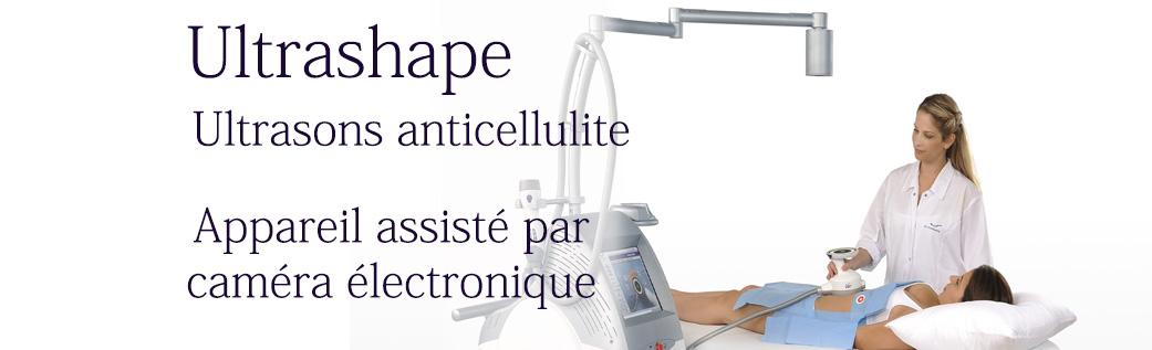 Ultrashape | Ultrasons HIFU