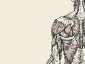 Trigger Points - Neuroproloterapia