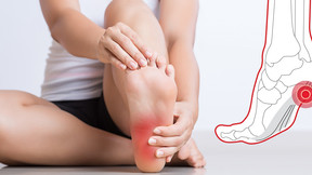 Plantar Fasciitis - SIPRO & ESP Medical Updates