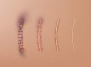 """Le cicatrici """"attive"""" causano disturbi posturali - La Verità 26/07/2021"""
