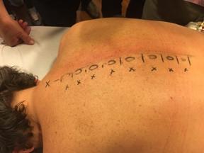 Disegno per Proloterapia del Rachide Toracico -Il rachide lombare rappresenta sempre una sfida per i