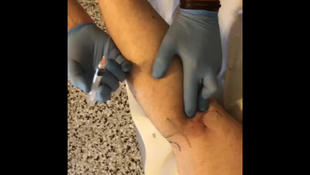 POSTERIOR KNEE WEAKNESS - SEMI MEMBRANOUS TENDON - PROLOTHERAPY TIPS & TRICKS