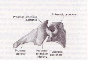 Mielopatia Spondilogena Cervicale