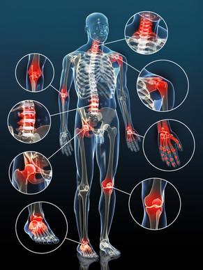 Con troppi antinfiammatori l'articolazione soffre