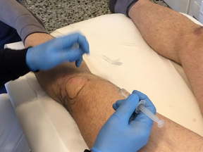 KNEE - PROLOTHERAPY TIPS & TRICKS