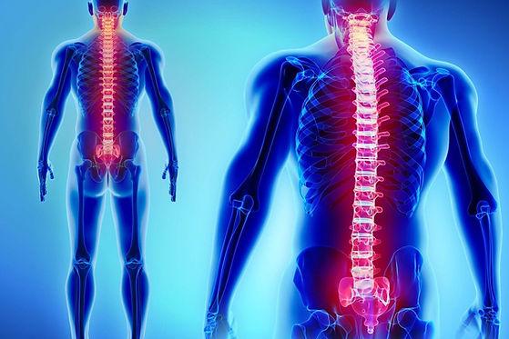 patologia-degenerativa-colonna-vertebrale-1.jpg