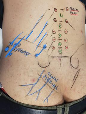 APPROFONDIMENTI -  PIT e nervi cluneali