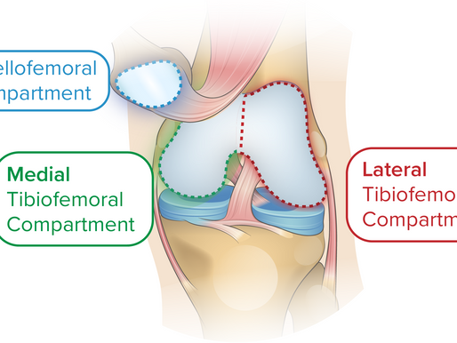 REVISION TOTAL KNEE REPLACEMENT SURGERY