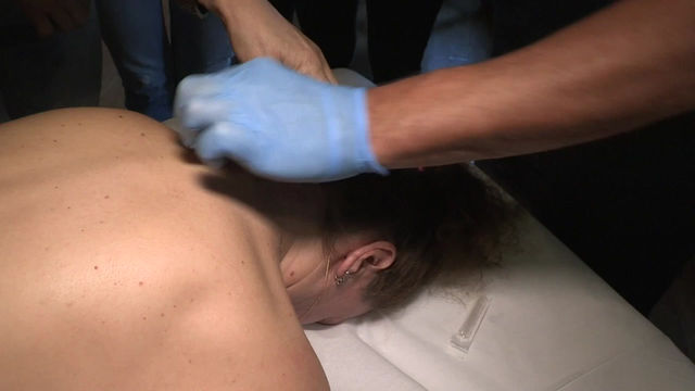 CERVICAL HEADACHE - TREATMENT WITH PROLOTHERAPY -THE TECHNIQUE EXPLAINED