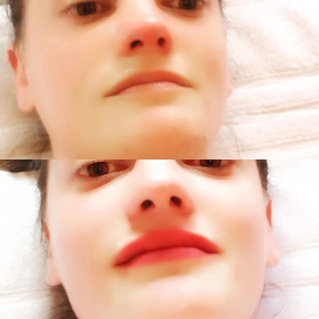 #lipfillers #oxfordlipfillers #beforeand