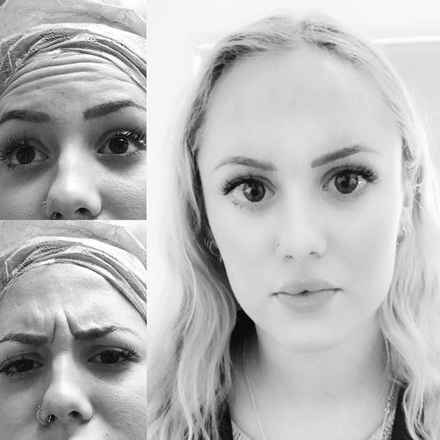 #oxfordbeautyclinic #botoxforehead #boto
