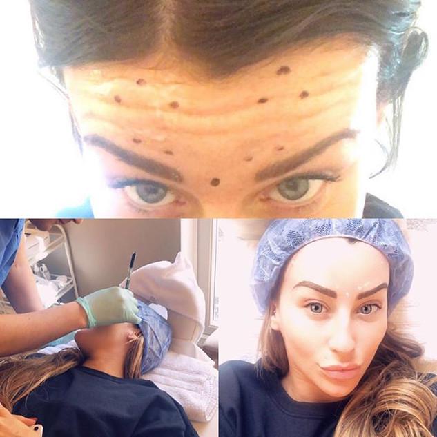 #oxfordbeautyclinic #botox #botoxforehea