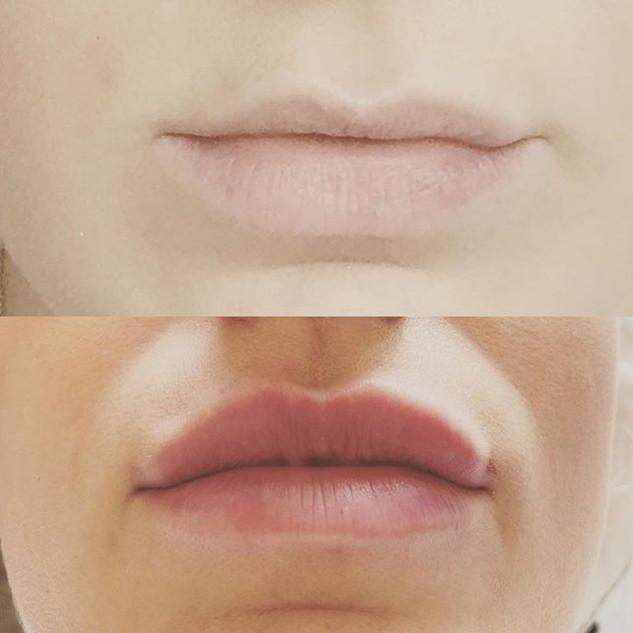 #oxfordbeauty #lipfillersoxford #oxfordl