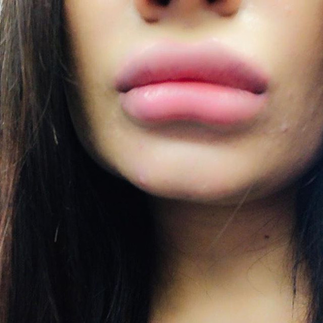 #lipfillers #lipinjections #oxfordshireb