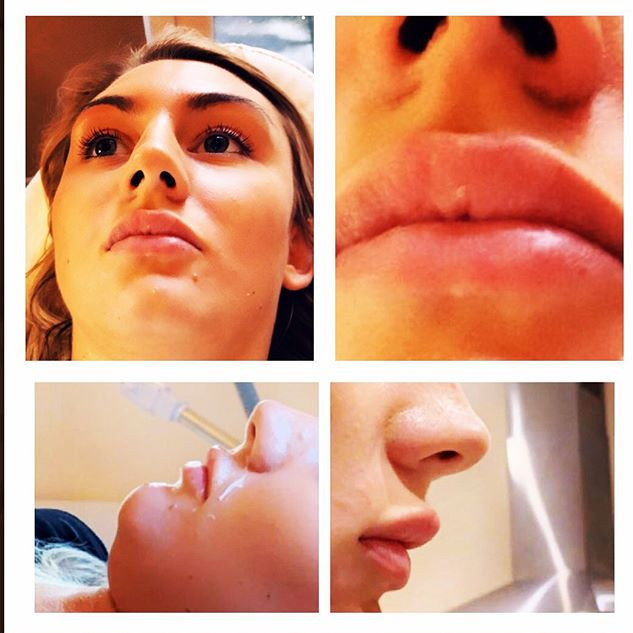 Lip Fillers at Enhance Beauty Aesthetics