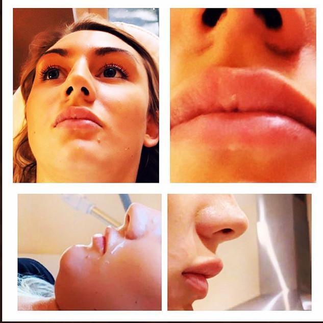 Lip Fillers at Enhance Beauty Aesthetics