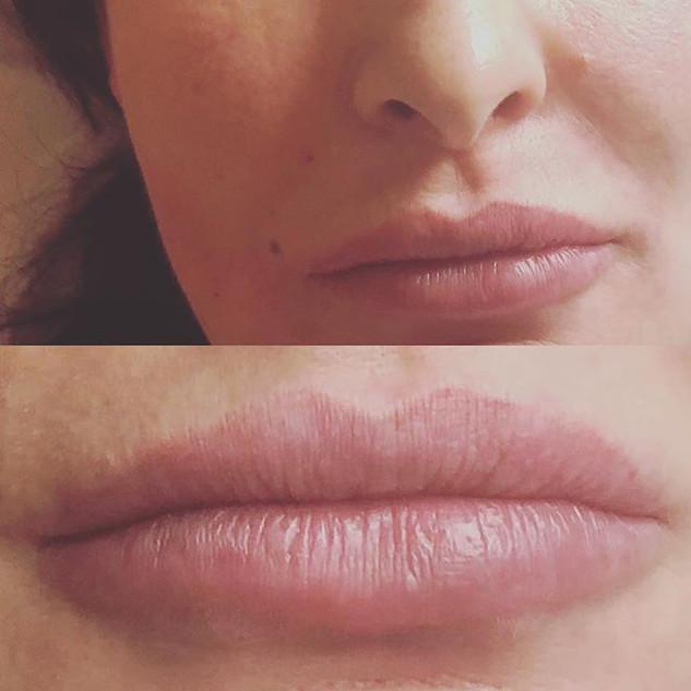 #lipfillers #lipfillersoxford #lips #oxf