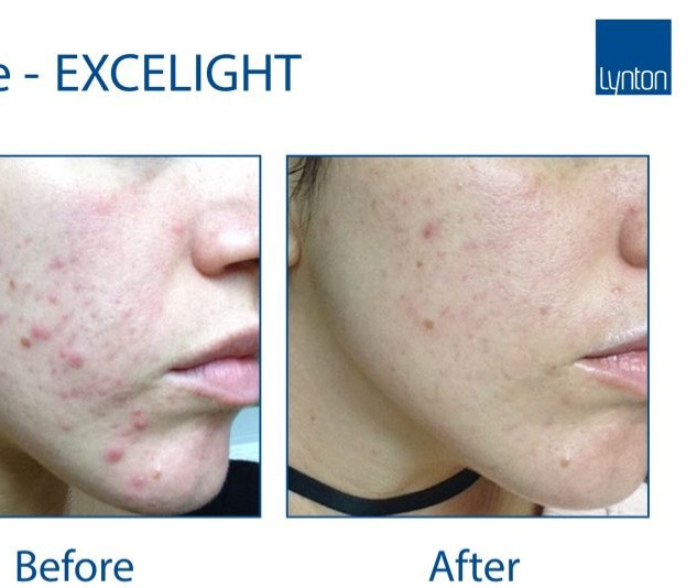 Excelight-Acne-Jades-Salon-768x576_edite