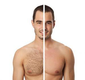 Männer Laser Haarentfernung.jpg