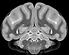NHP Brain.png