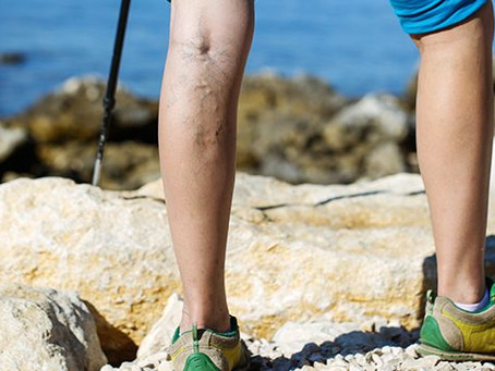 Reducing Symptoms of Venous Insufficiency Via Dietary Supplements