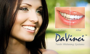 78-off-an-hour-teeth-whitening-session-f