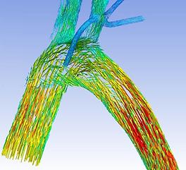 Cardiovascular_consultancy_fluid_dynamic