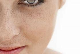 Let's Talk Hyperpigmentation!
