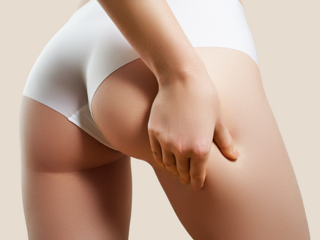 Why do I get Cellulite?