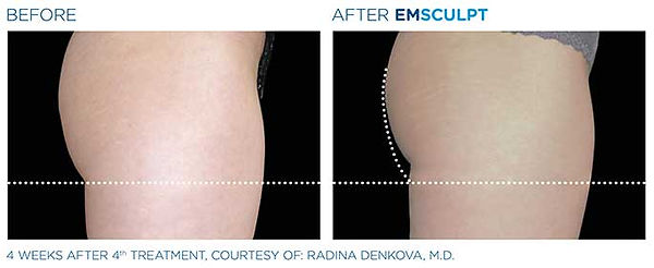 emsculpt-before-after-9.jpg
