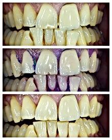 Carolina Traviglia - hygiéniste dentaire