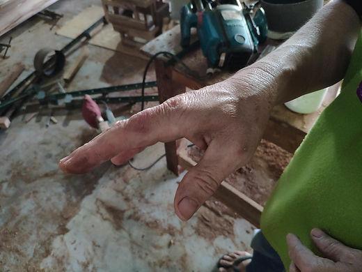 มือของช่างนาทที่พึ่งผ่าตัดมา (1).jpg
