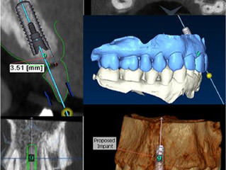1st Monthly Guided Implant Surgery Study Club - May 2015