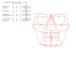 PA Tracing measurements Final_001