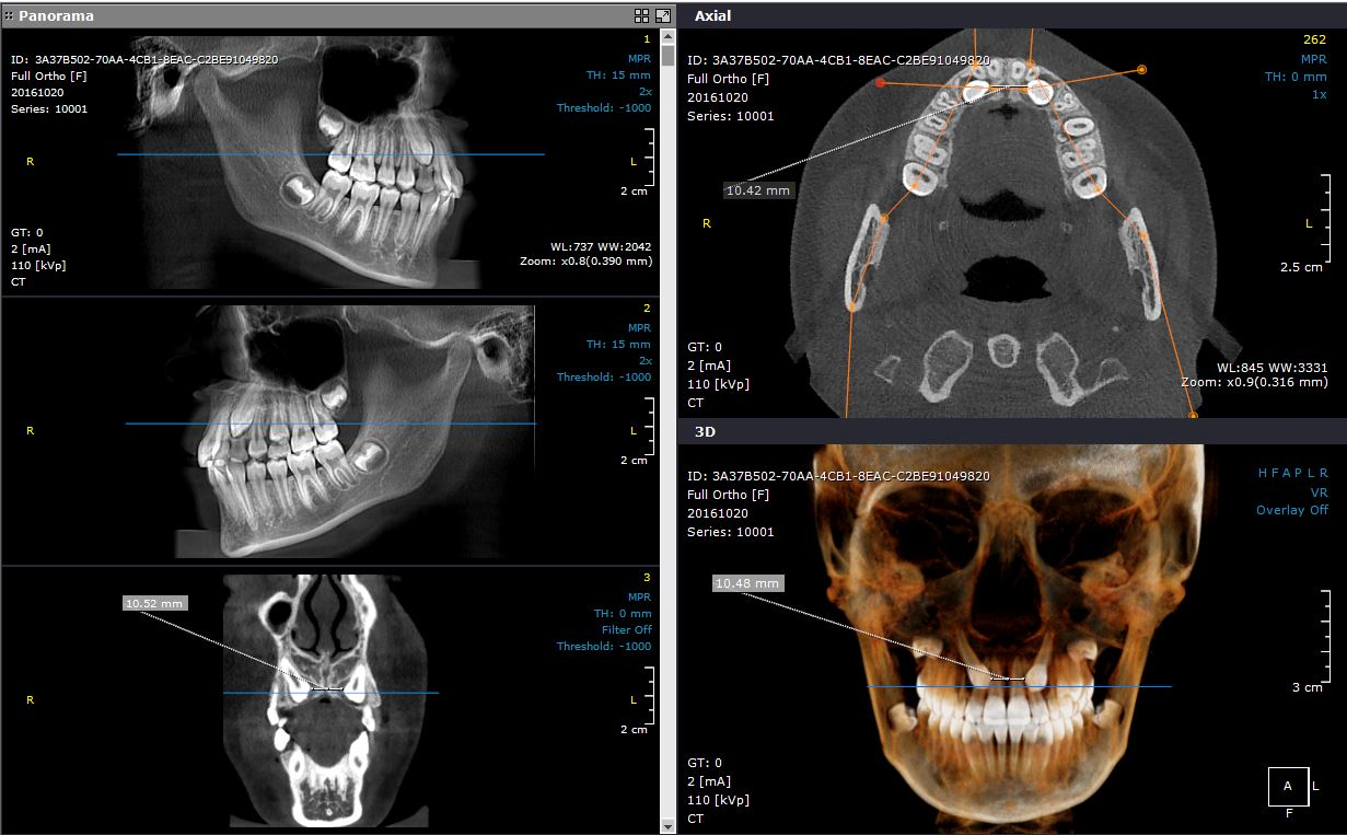 Full Ortho snapshot lateral Jaw
