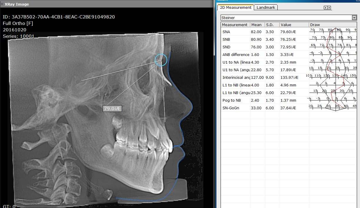 Full Ortho snapshot Lateral Ceph SNA measurement